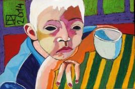 Garçon albinos