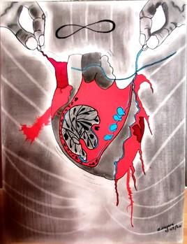Cœur meurtri