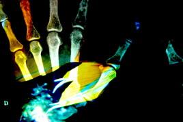 la main euphorique