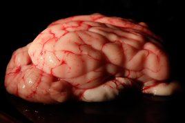 La cervelle