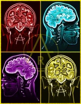 Multi brain